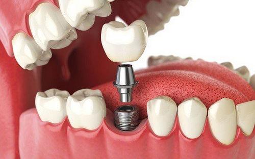 كتاب زراعة الاسنان للمارس العام