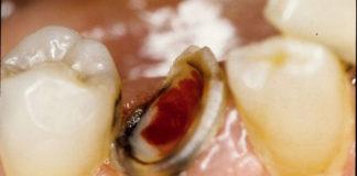 تشخيص وعلاج امراض الجذور الاسعافية Endodontic Emergencies
