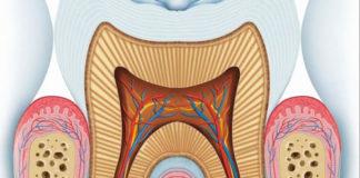 محاضرات التشخيص في علاج الجذور Endodontic Diagnosis