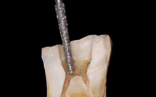 أفضل المحاضرات في ال Access cavity preparation
