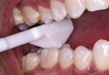 الاختبارات التشخيصية في علاج الجذور Endodontic tests