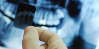 Dental Radiographic interpretation platform