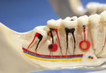 Endodontic RCT Step by step platform