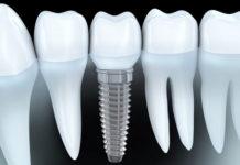 Implants platform