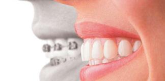 Orthodontics platform