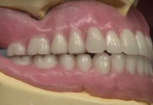 Removable Prosthodontics platform