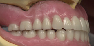 Removable Prosthodontics platform
