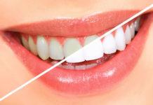 Teeth Bleaching platform