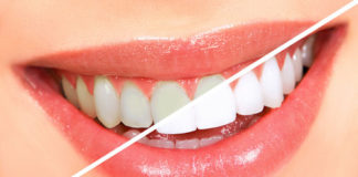 Teeth Bleaching platform