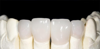 Zirconia Crowns platform