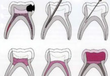 Pulpectomy in Primary teeth - Treatment