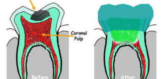 Pulpotomy in Primary teeth | Treatment