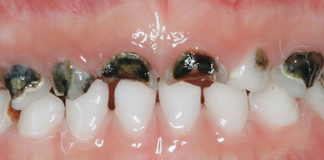 Rampant caries in Primary teeth - Academic Knowledge