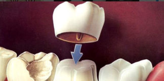 Crowns & Bridges - Dentistry online