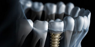 Implants - Dentistry online