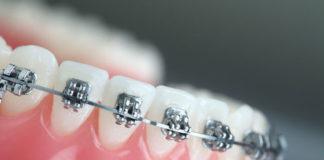 Orthodontics - Dentistry online