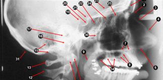 Extra-oral Radiographic landmarks - Quiz