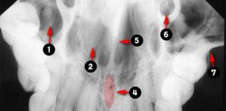 Occlusal Radiographic landmarks - Quiz