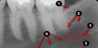 Periapical Radiographic landmarks - Quiz